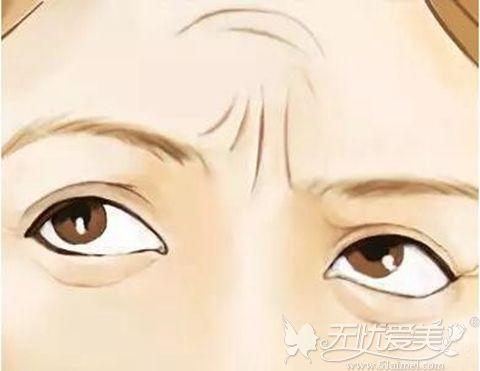 眉间川字纹