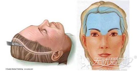 拉皮手术祛除眉间纹