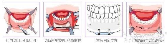 假体隆下巴手术过程