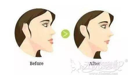 牙齿矫正改善下巴外翘烦恼