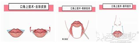 嘴角上提术手术过程
