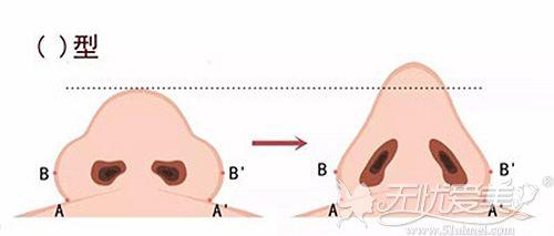 鼻头肥大和正常鼻型的区别