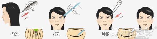睫毛种植的手术原理