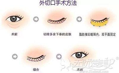 外切法去眼袋的手术过程解析