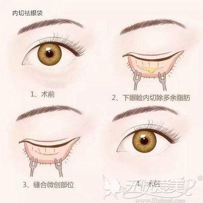 内切法去眼袋的手术过程
