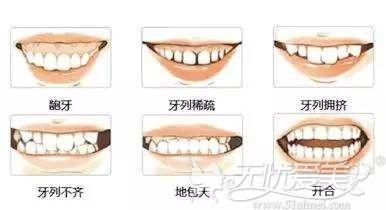 可以通过牙齿矫正改善的情况
