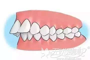 地包天分为骨性和牙性