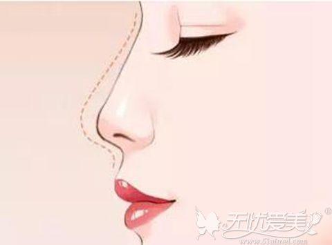 膨体隆鼻和肋骨隆鼻哪个好