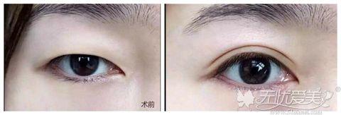 眼睛内双做双眼皮