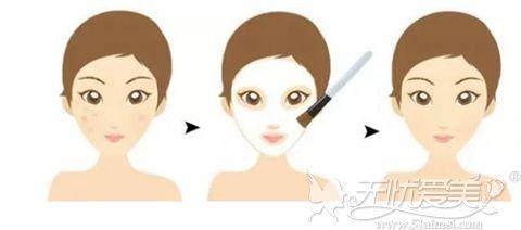 果酸焕肤的过程