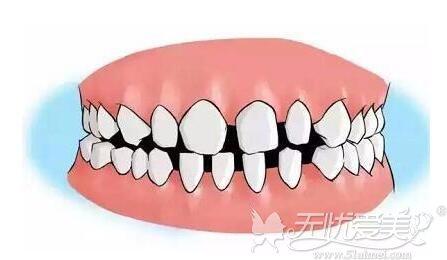牙缝大的原因