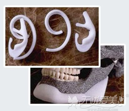 Medpor生物材料耳修复材料