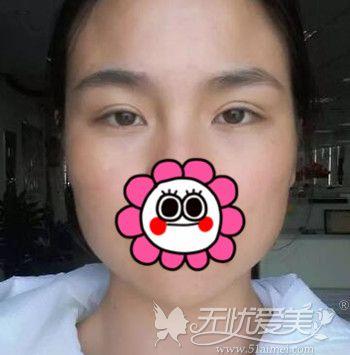 在北京百达丽做双眼皮修复手术前
