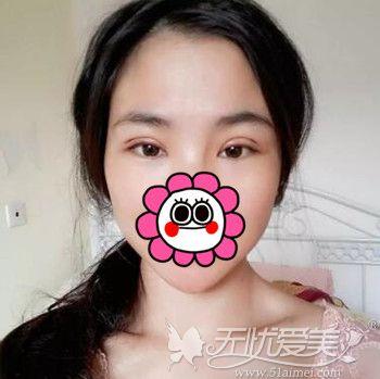 在北京百达丽做双眼皮修复手术后第3天