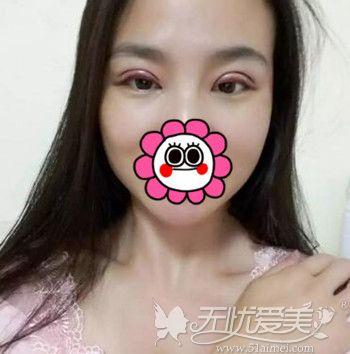 在北京百达丽做双眼皮修复手术后第1天