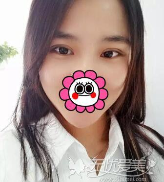 在北京百达丽做双眼皮修复手术后1个月