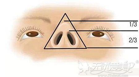 肋软骨隆鼻鼻尖高度的标准