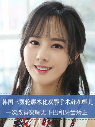 """韩国""""三颚轮廓术""""改善突嘴、无下巴的同时还能矫正牙齿"""