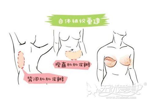 自体组织乳房再造
