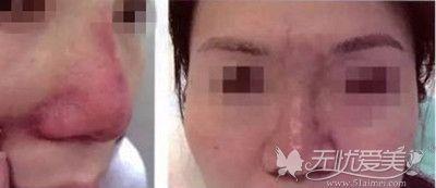 鼻子注射骨粉后引起的并发症