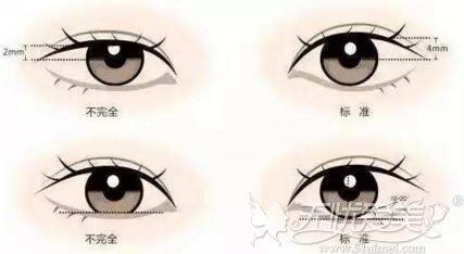 瞳孔暴露率低