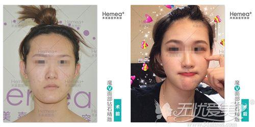 北京禾美嘉面部填充对比案例