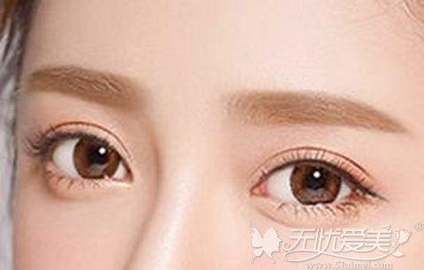 双眼皮整形