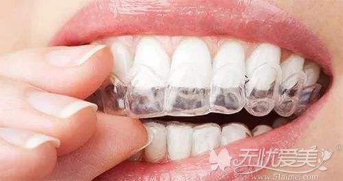 牙齿隐形矫正