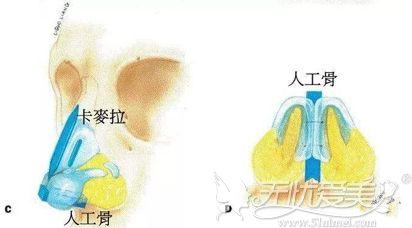 人工骨隆鼻图片