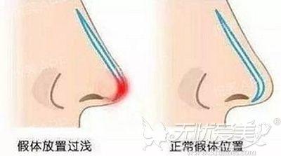 假体隆鼻造成鼻头发红的原因