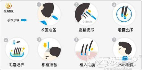 植发手术过程