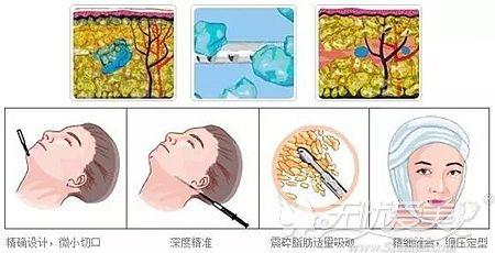 面部吸脂的原理解析