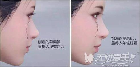 苹果肌存在的作用