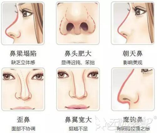 哪些人不适合注射隆鼻