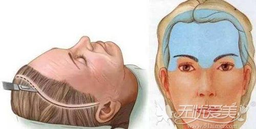 传统拉皮手术