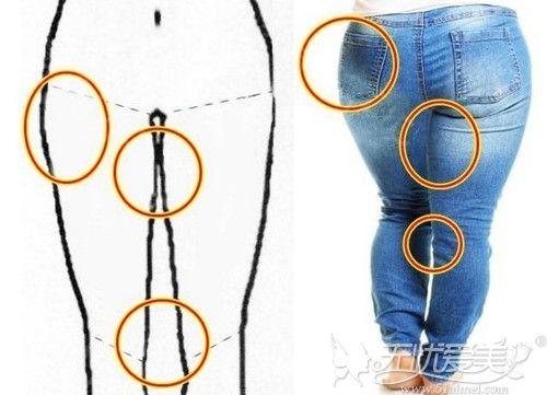 """""""大象腿""""一直减不掉?选择韩式腿部吸脂术帮你拥有美腿"""