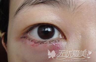 去眼袋手术后出现出血淤青