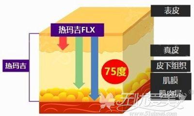 韩国第五代热玛吉Thermage FLX原理