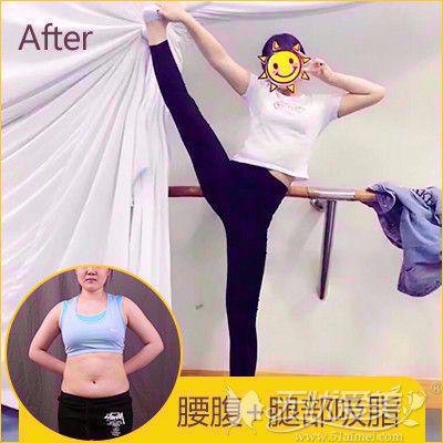 郑州华领腰腹部前后对比