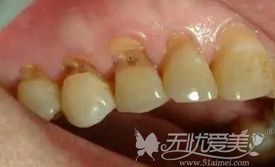 牙齿楔状缺损较严重的级别