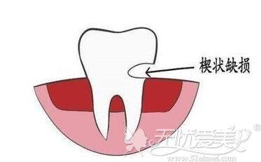 牙齿楔状缺损