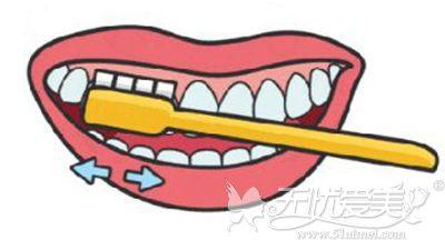 横向刷牙容易造成牙齿楔状缺损