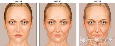 年龄增加 胶原蛋白流失 皮肤衰老