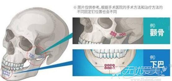 面部轮廓整形需要使用钛钉