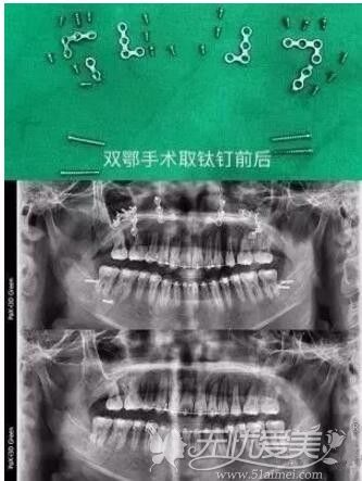 双鄂手术后取出钛钉