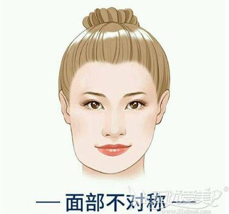 下颌角宽 脸部面部不对称