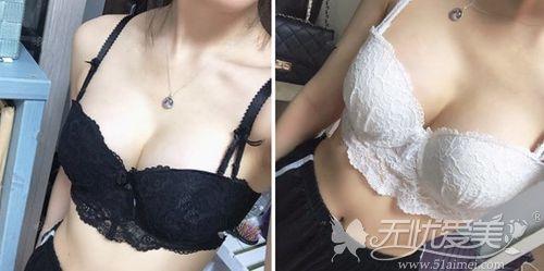 在韩国玛博尔做蓓菈假体丰胸手术后3个月