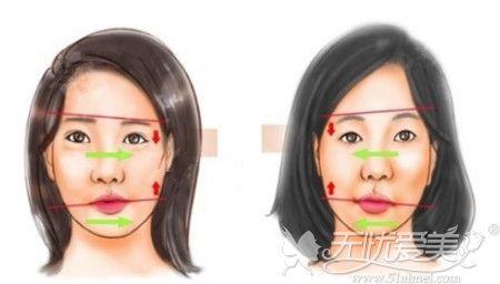 面部不对称的原因