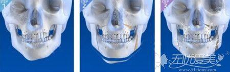 骨骼不对称的改善方法