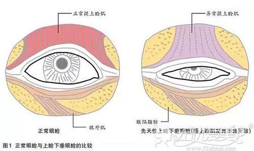 上睑提肌无力现象也容易大小眼